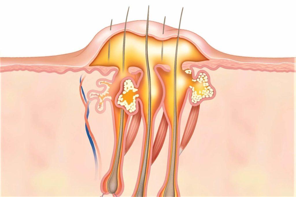 Абсцесс мягких тканей (4)