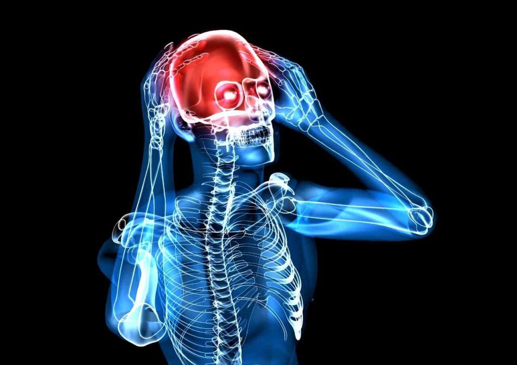 Аневризма сосудов головного мозга (8)