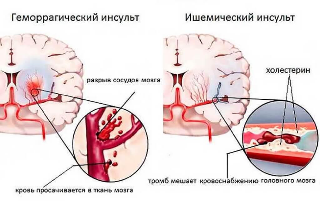 Геморрагический инсульт клиническая картина
