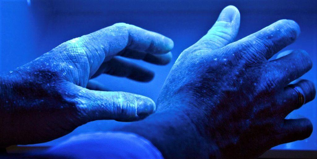 Аргироз - синяя кожа