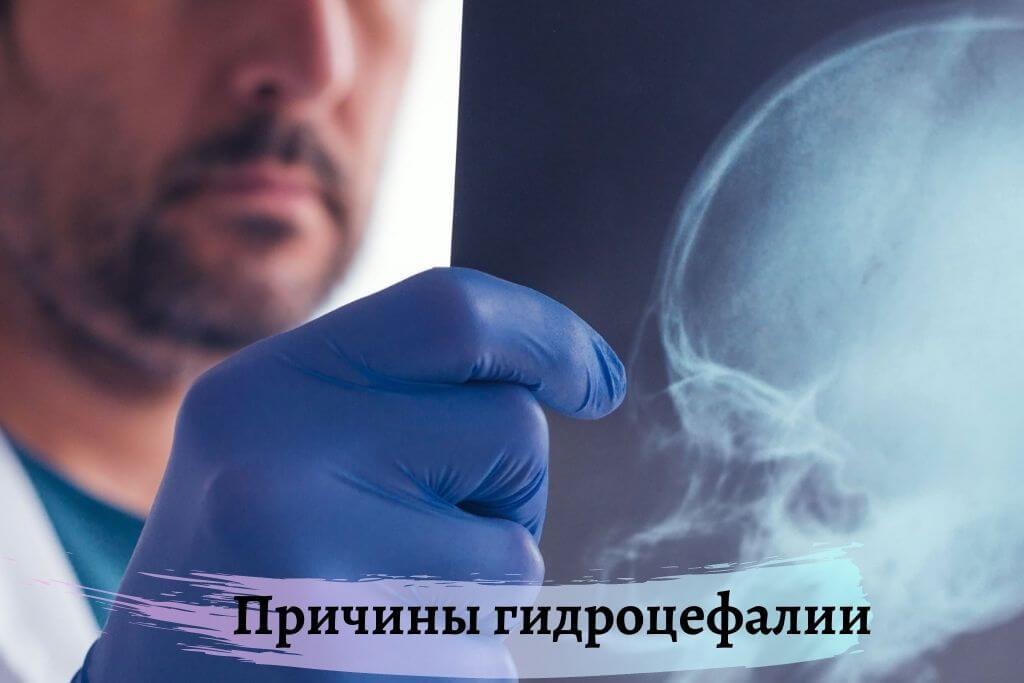 Причины наружной гидроцефалии