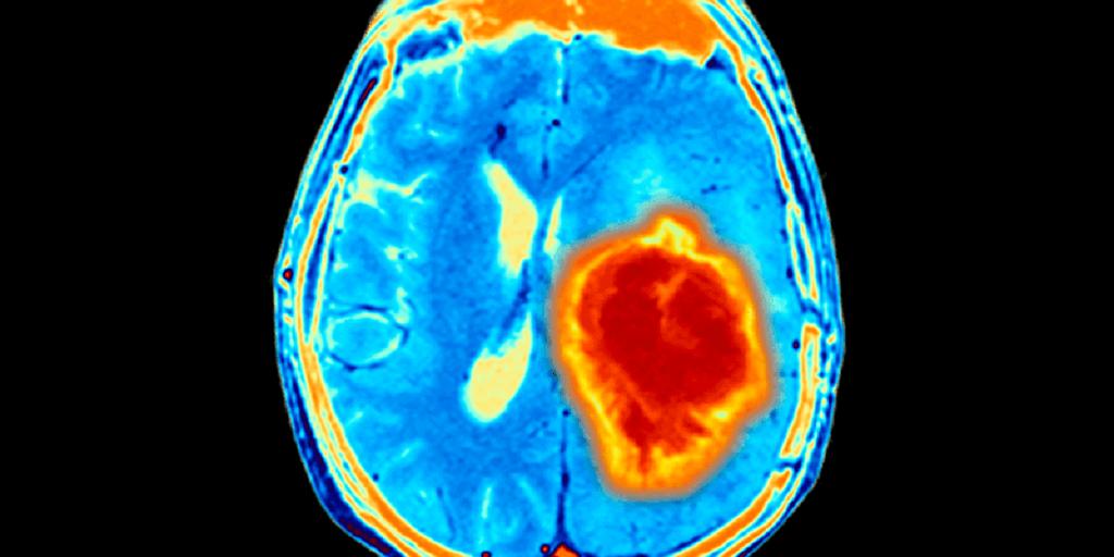 Глиобластома головного мозга классификация