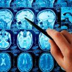 Кавернома головного мозга что такое, лечение
