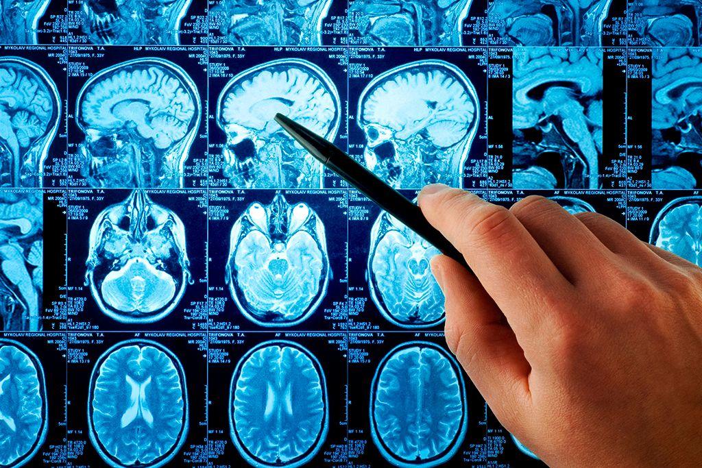 Кавернома головного мозга: что такое, лечение