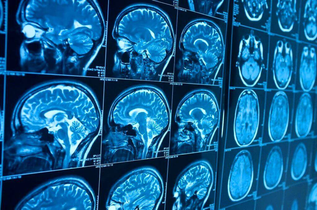 Церебральная ангиография сосудов головного мозга что это такое