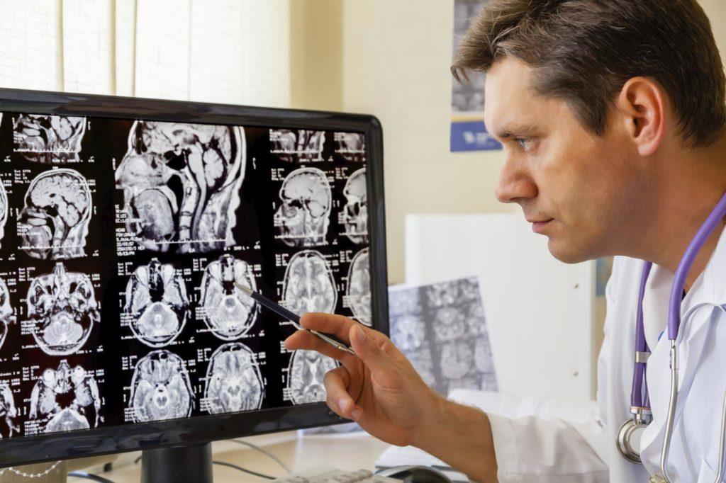 Кавернома головного мозга лечение
