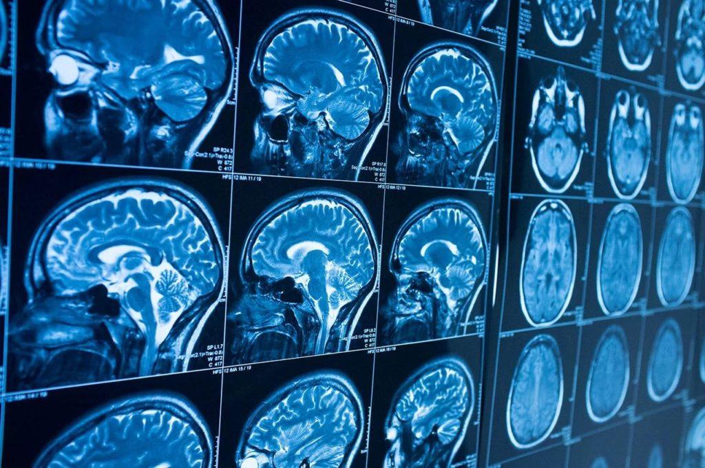 Кавернома головного мозга формы
