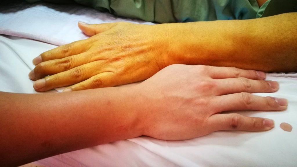 Синдром жильбера симптомы