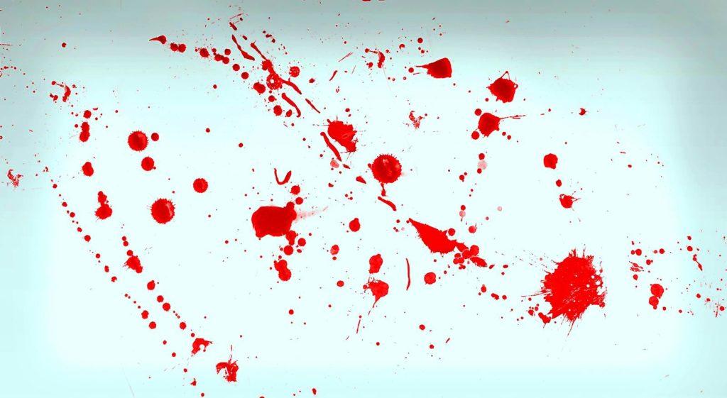 Кровь из носа как избежать