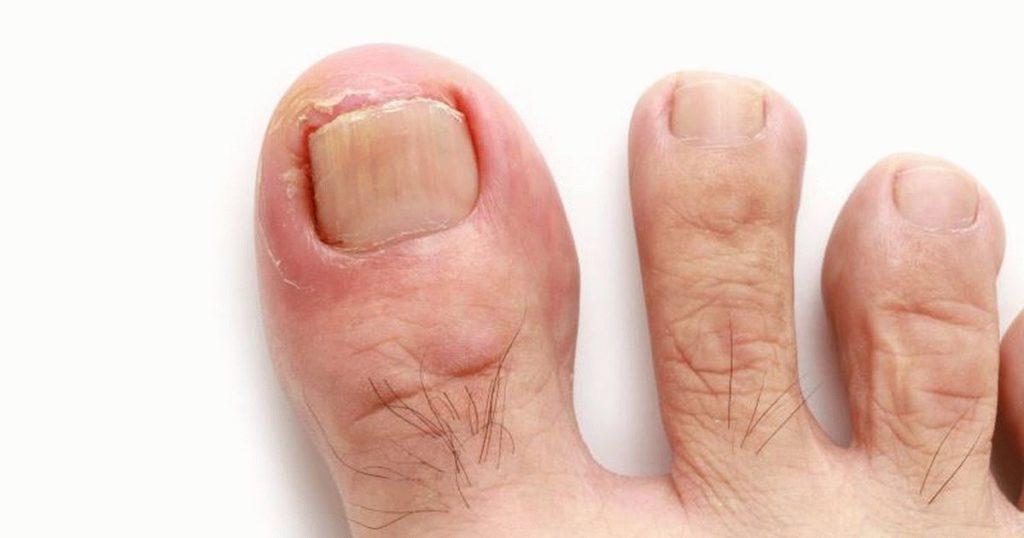 Вросший ноготь симптомы