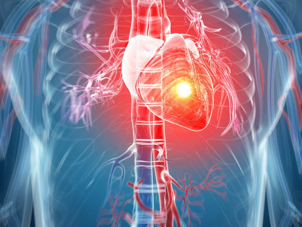 Возможные болезни сердца