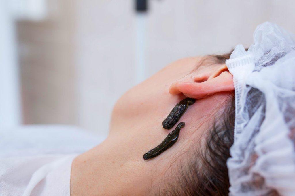 Гирудотерапия что происходит во время сеанса