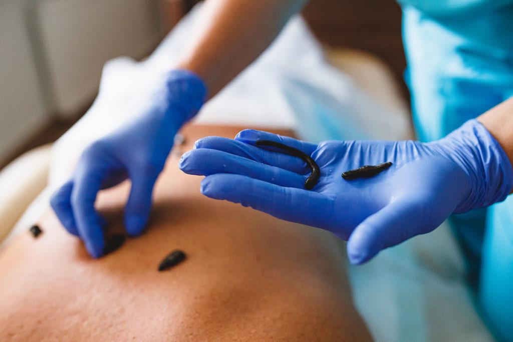 Гирудотерапия метод лечения