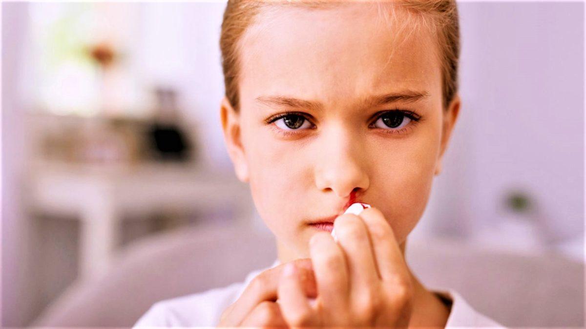 Носовое кровотечение: из-за чего может быть?