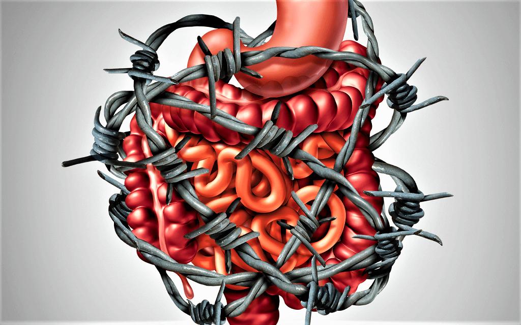 Синдром раздражённого кишечника