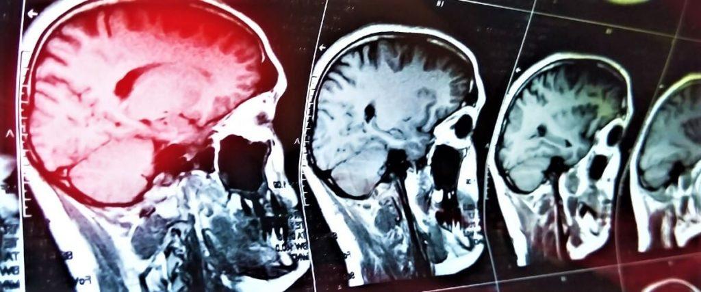 Сотрясение головного мозга: как происходит, симптомы и сколько лечится