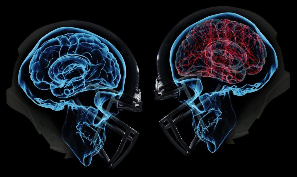 Формы сотрясения мозга