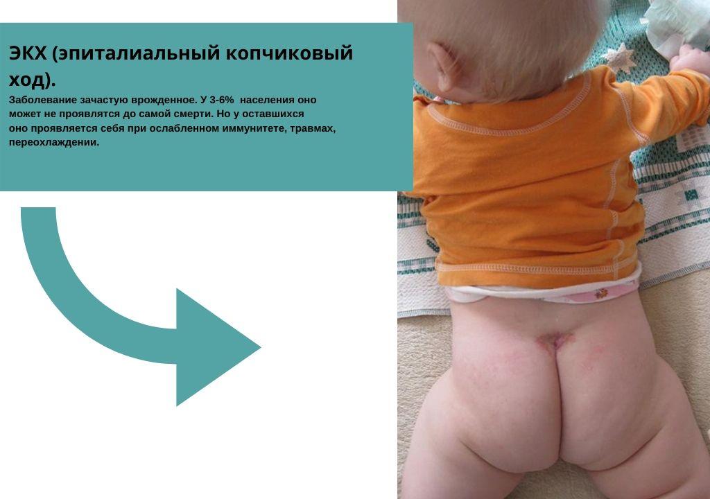 киста копчика у ребенка (ходы, воспаление, выделения)