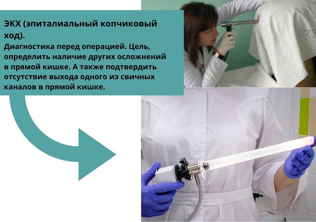 Ректороманоскопия Диагностика перед операцией удаления кисты копчика