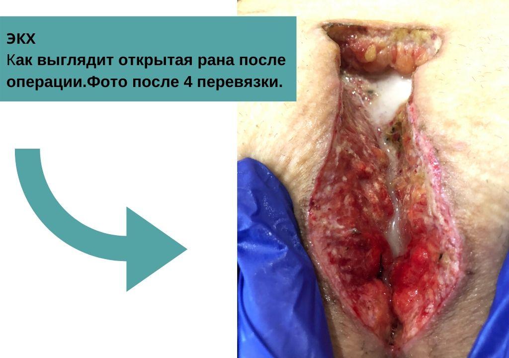 ЭКХ киста копчика - открытая рана после операции