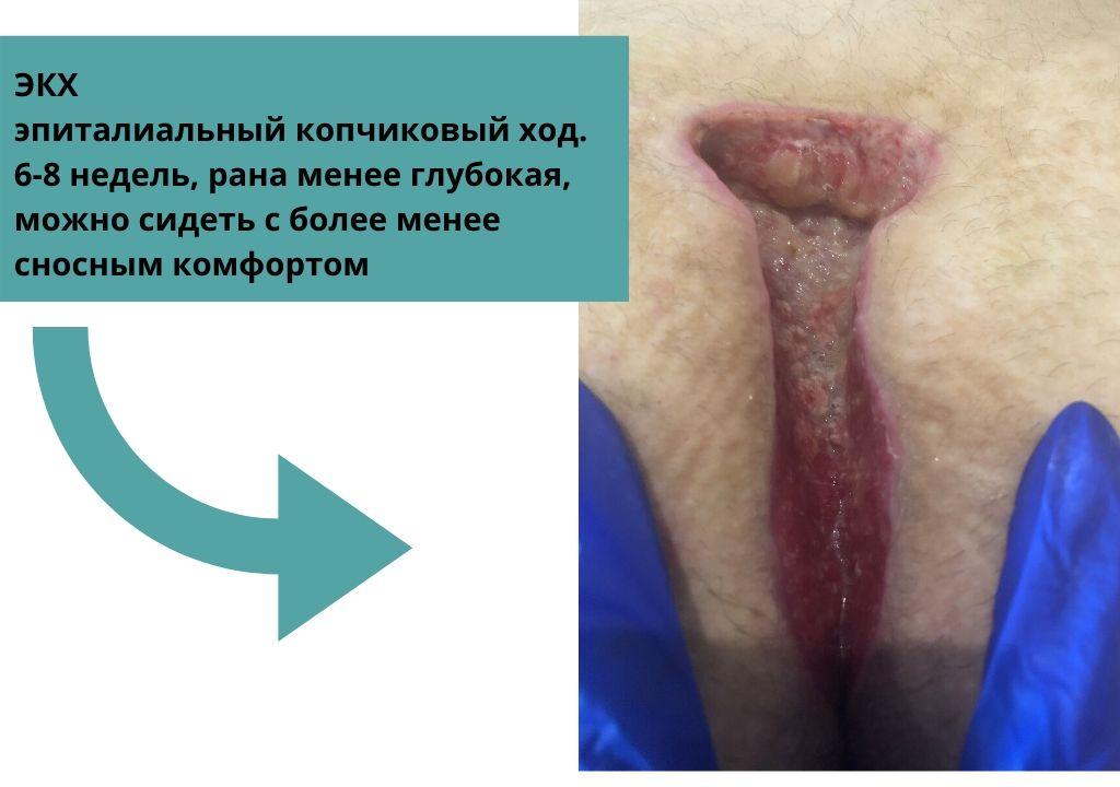 Эпиталиальный копчиковый ход 6-8 недель после операции