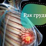 Рак груди: обнаружить и избежать