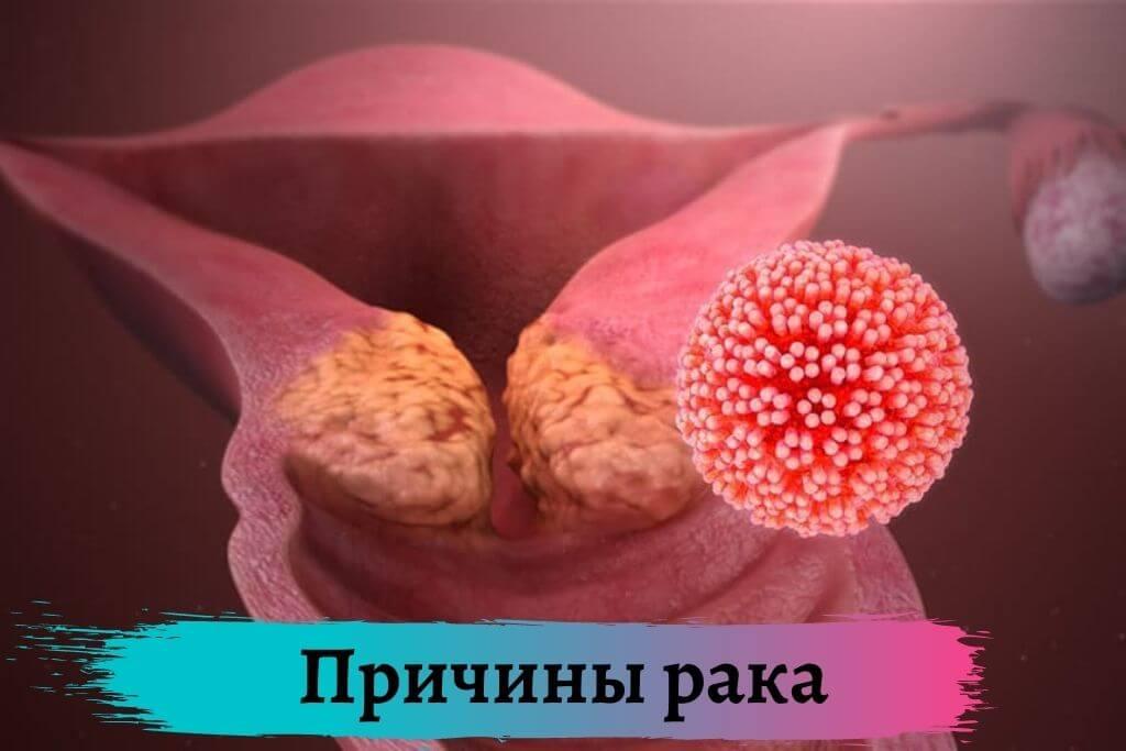 Причины рака
