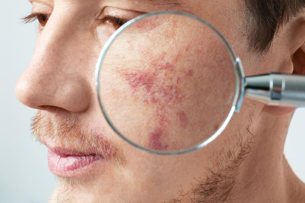 Рак кожи. Влияет ли ультрафиолетовые лучи на его появление?
