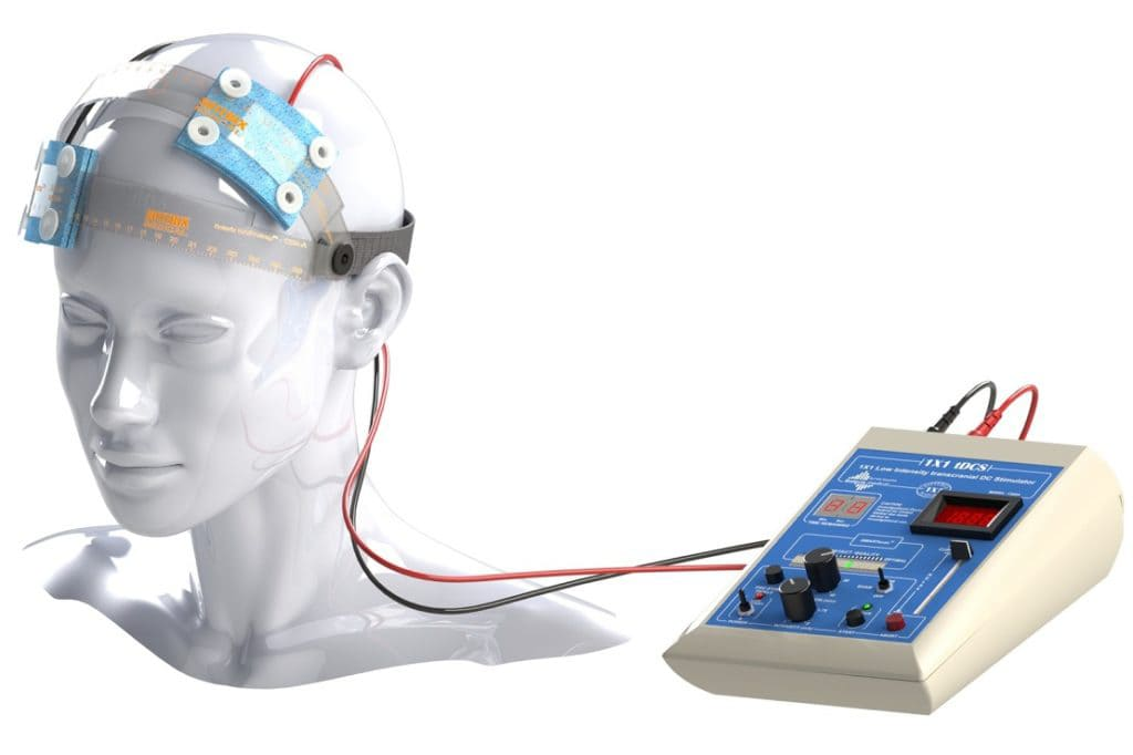 Что такое электросудорожная терапия