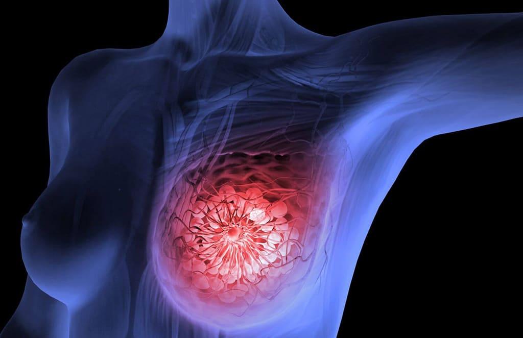Рак груди: как обнаружить и как избежать возникновения опухоли