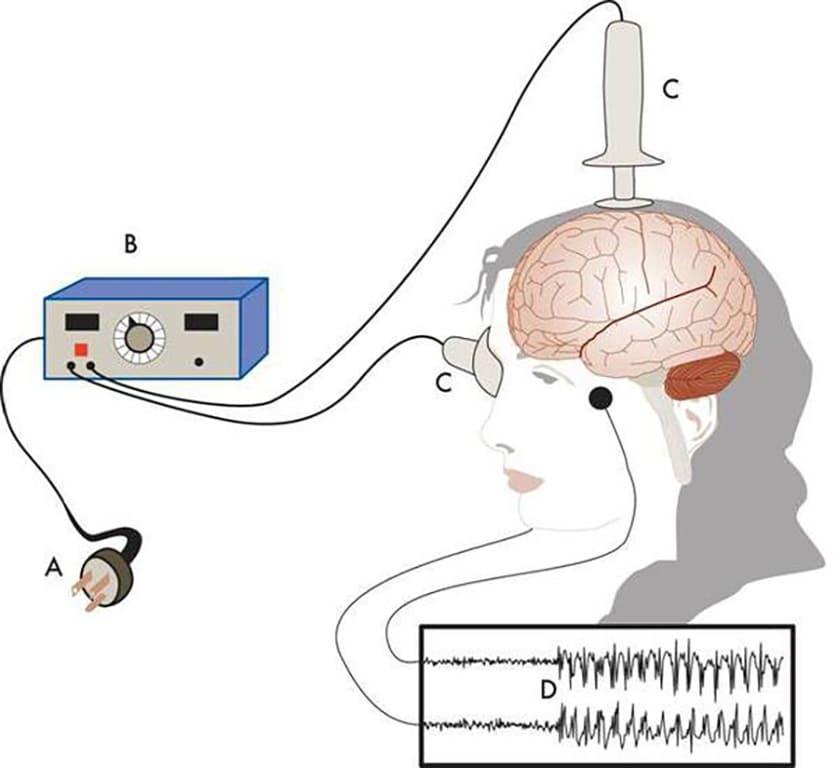 Особенности электросудорожной терапии