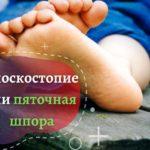 Плоскостопия или пяточная шпора