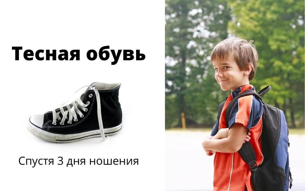 Тесная обувь как причина проблемы