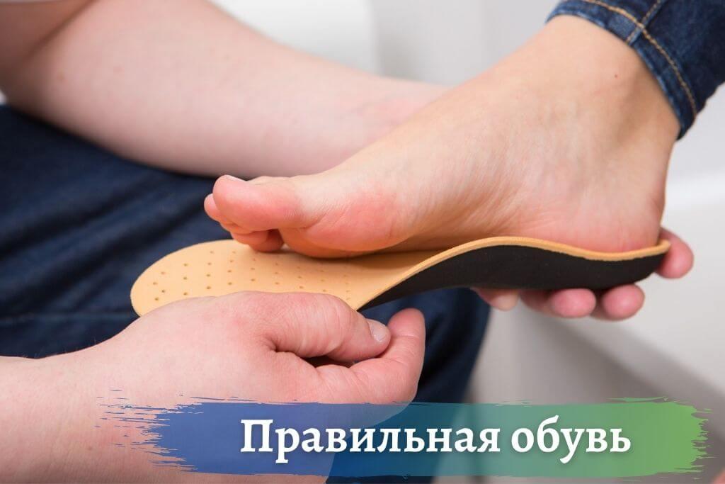 Правильная обувь при плоскостопии