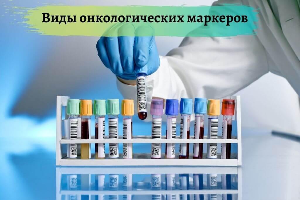 Виды онкологических маркеров