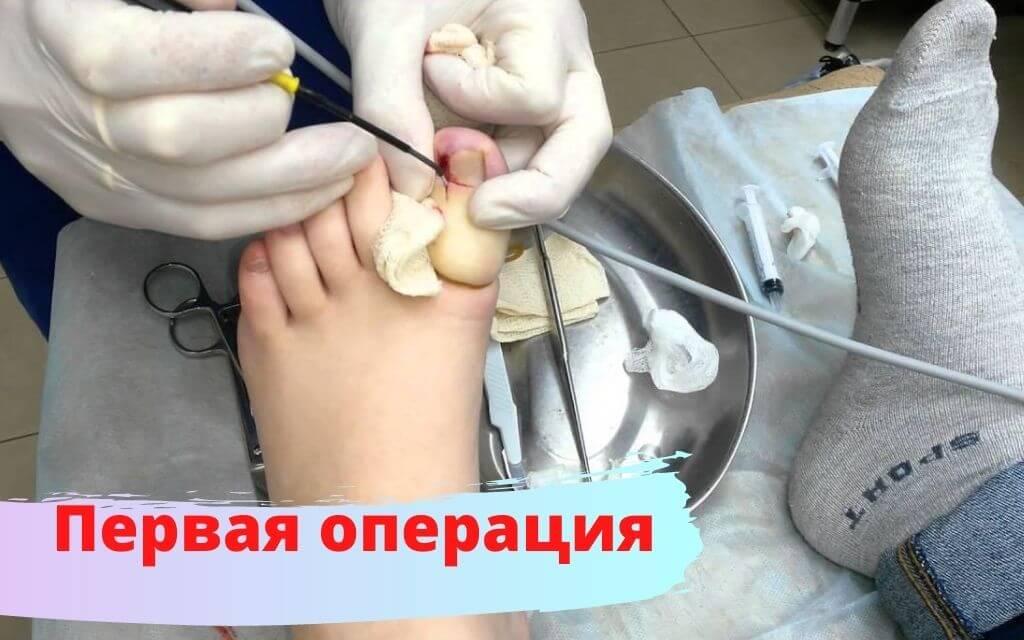 Первая операция