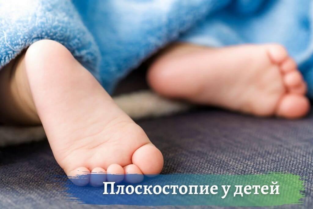 Плоскостопие у детей