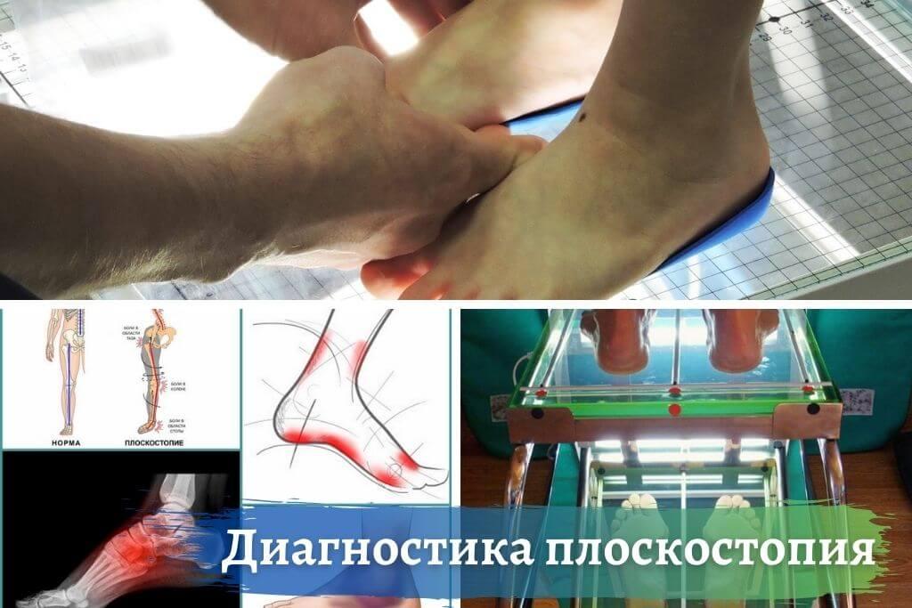 Диагностика проблемы плосккостопия