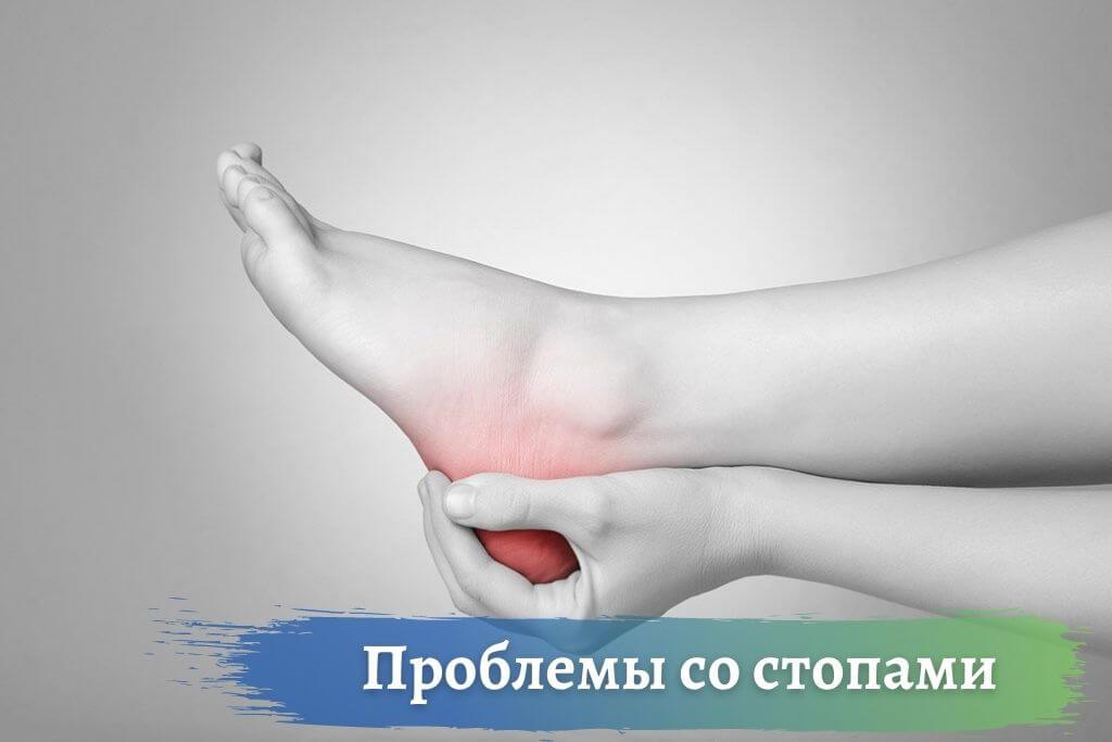 Частые проблемы со стопами