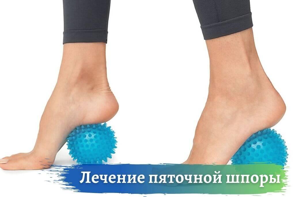 Лечение пяточной шпоры или плоскостопия