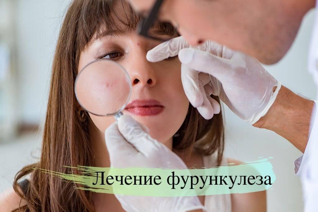 Фурункулёз и лечение