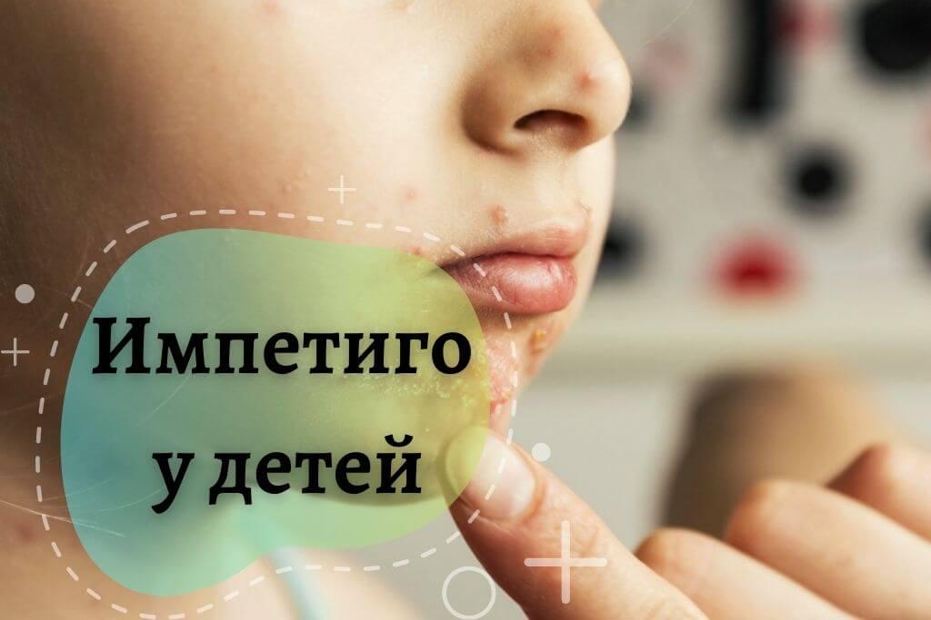 Что такое импетиго у детей и как его лечить?