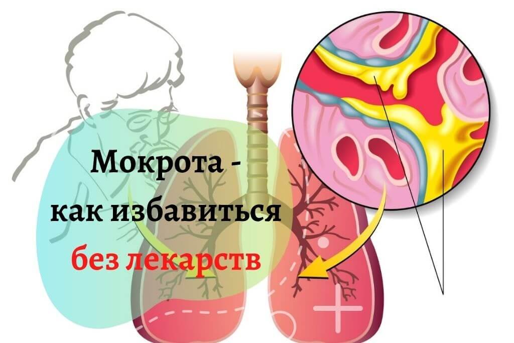 Как избавится от мокроты в горле без лекарств