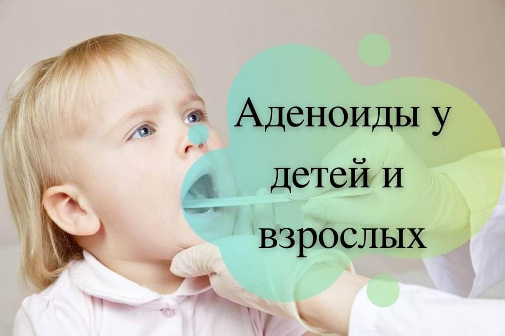 Аденоиды у детей и взрослых