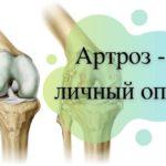 Личный опыт лечения артроза