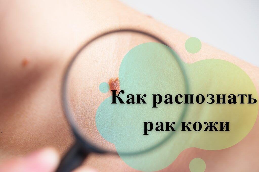 Как распознать рак кожи