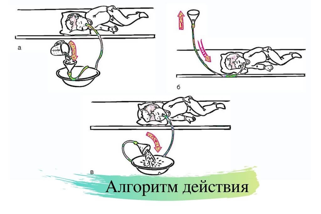 Алгоритм промывания желудка