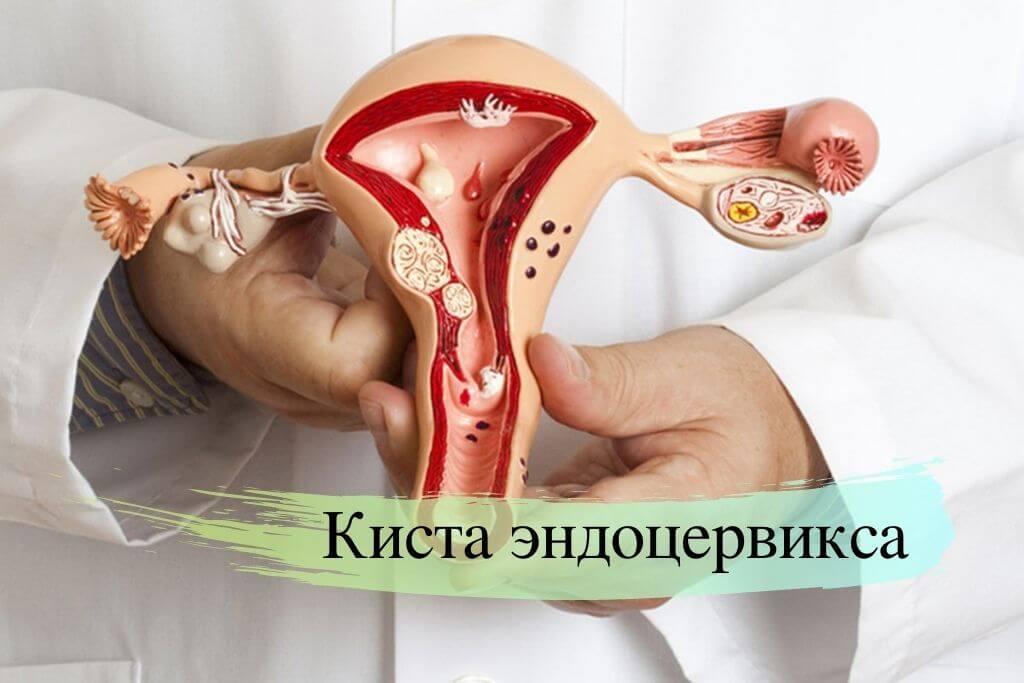 Киста эндоцервикса шейки матки