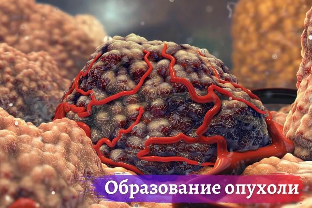 Почему образуется опухоль?