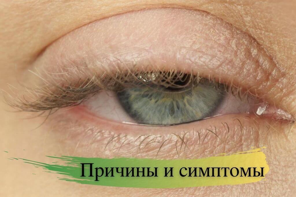 Причины и симптомы миастении